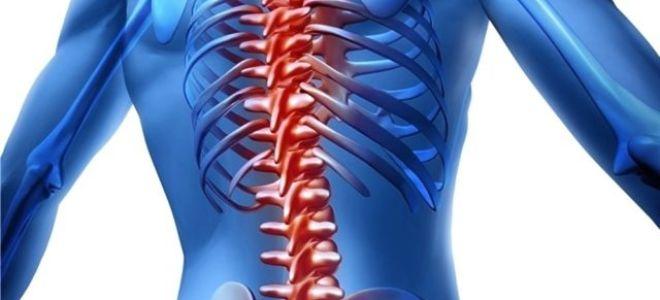 Острые боли в грудном отделе позвоночника как признак невралгии