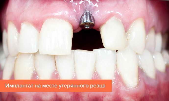 Преимуществ и недостатки имплантации зубов