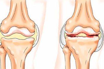 коленные остеофиты