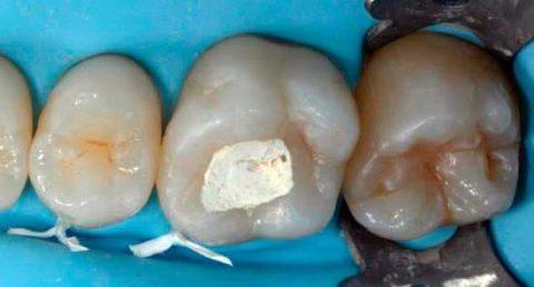 Зубная пломба с мышьяком