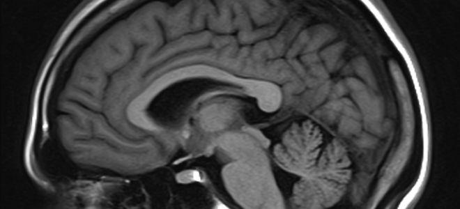 Арахноидальная киста у ребенка: стоит ли паниковать?
