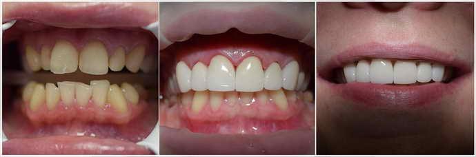 Установка виниров и восстановление зубной эмали