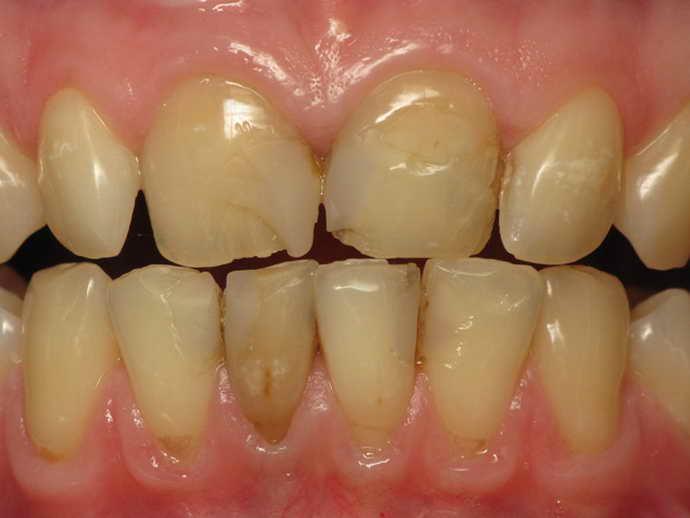 симптомы повреждения зубной эмали