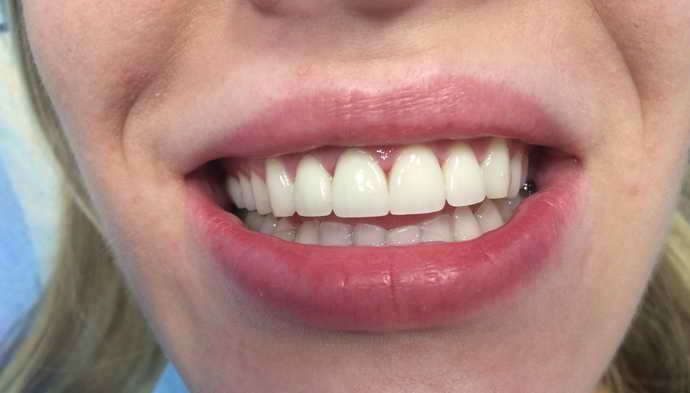 металлокерамические коронки на зубы рассчитаны на максимум жевательной нагрузки