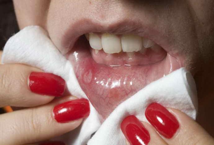 Методы лечения язв на языке
