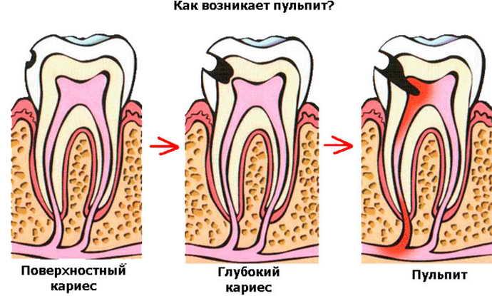 почернел запломбированный зуб