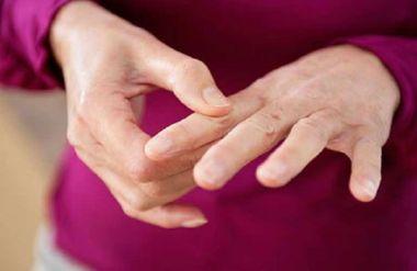 остеофиты на пальцах руках