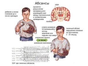 Абсансная эпилепсия