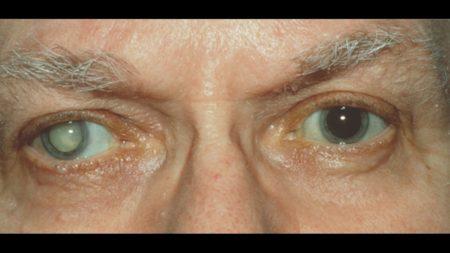 Причины появления слепоты при сахарном диабете, как избежать ухудшения зрения – основы терапии