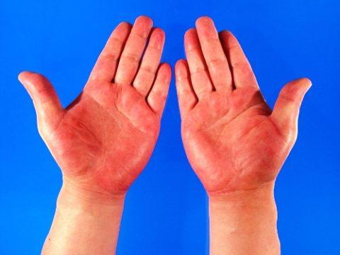 Пальмарная эритема – один из косвенных симптомов цирроза