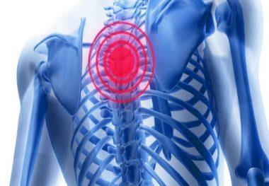 грудной остеохондроз