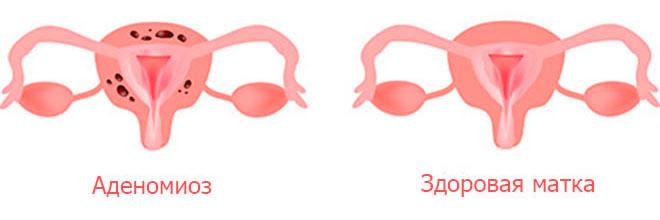 Заболевание, которое характеризуется прорастанием эндометрия в стенки матки. Патология развивается на фоне воспалительного процесса