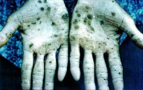 Так нарушается кожный покров при контакте с ртутью.