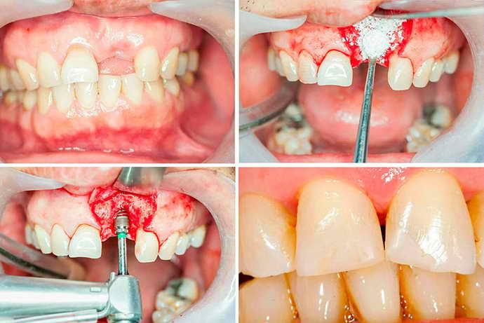 перед установкой импланта пациенту требуется операция по наращиванию костной ткани