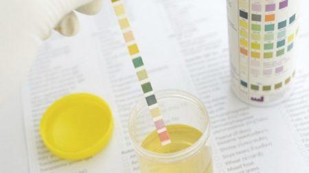 Как собрать материал для суточного анализа мочи на сахар, норма и расшифровка показателей