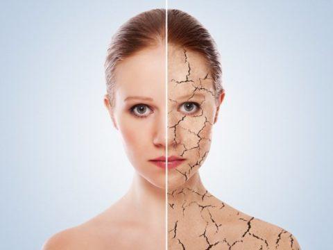 На фото обезвоживание организма приводит к изменению кожных покровов.