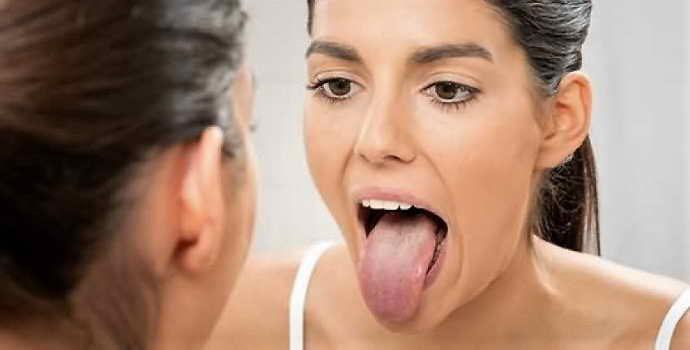 Что делать, если заболел язык