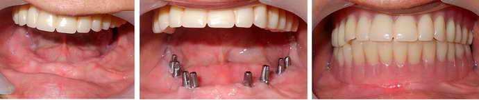 Базальный метод имплантации при пародонтозе
