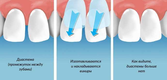 исправление кривых зубов керамическими винирами