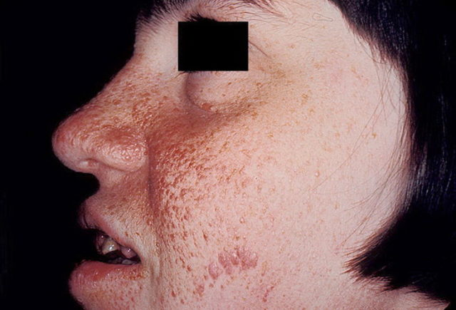 Сыпь на лице