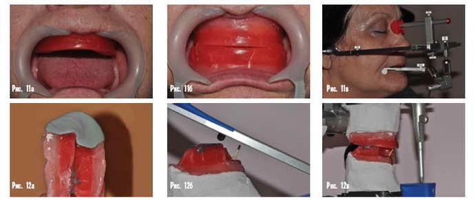 В лаборатории моделируют восковую челюсть с ненастоящими зубами