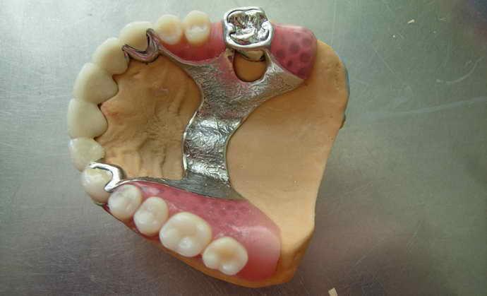 Классификация бюгельных протезов