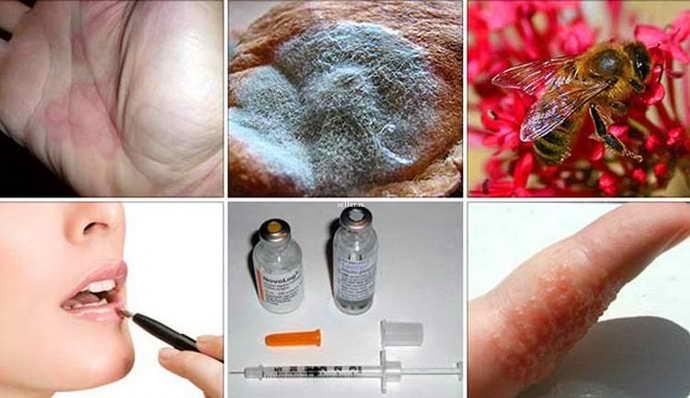 Аллергия и стоматит на языке