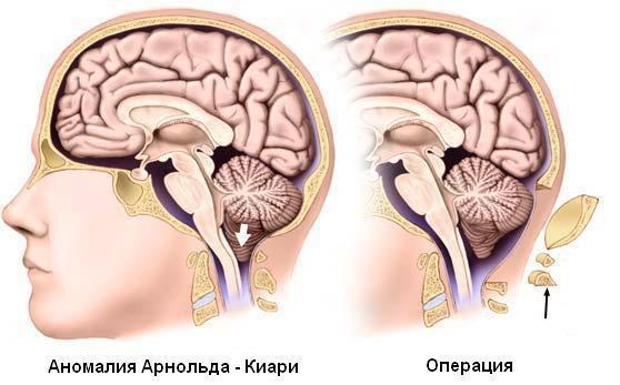 Лечение аномалии Арнольда Киари