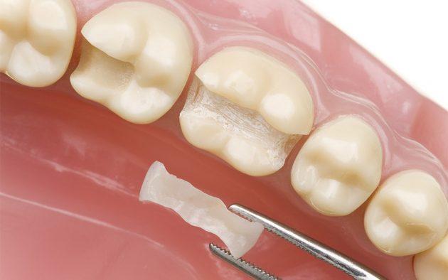 Восстановительная вкладка на зуб при фиссурном кариесе