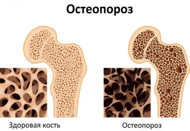 остеопороз в кости