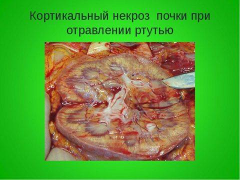 На фото - специфические изменения в почечной ткани