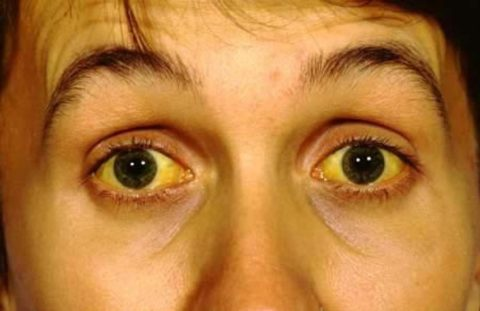 Прогрессирующая желтуха свидетельствует об остром токсическом гепатите