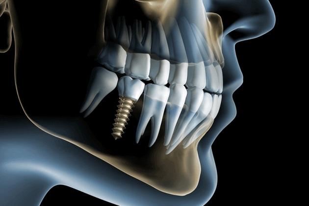 после имплантации зуба