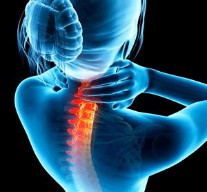 остеоартроз шейного отдела
