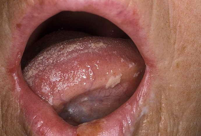 Молочница и белый язык
