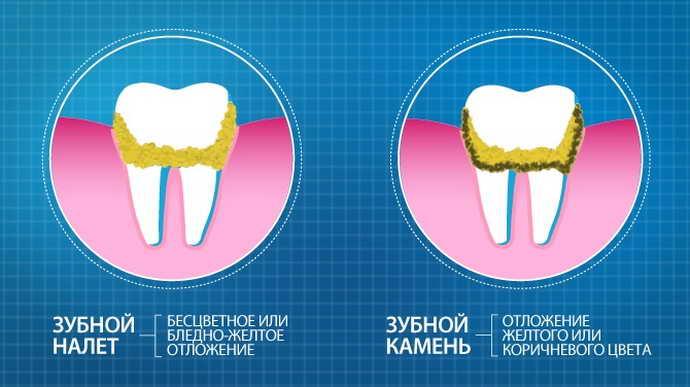 Что такое зубной камень, почему он образуется