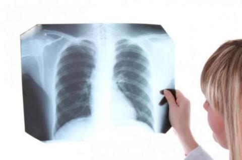 На фото рентгеновский снимок легких с явным очагом туберкулезной инфекции.