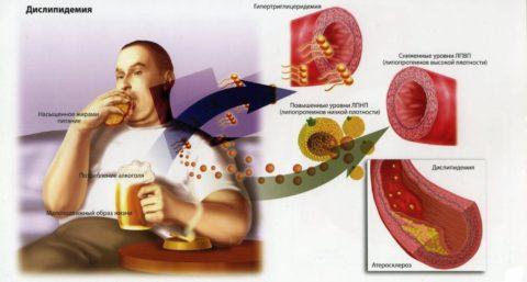 На фото изображены основные причины атеросклероза