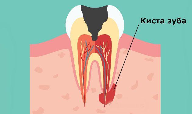 киста зуба - осложнение хронического периодонтита