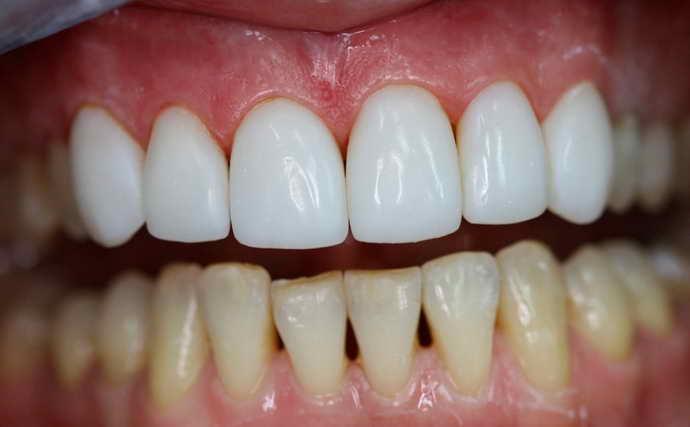 Выбор материала для исправления кривизны зубов
