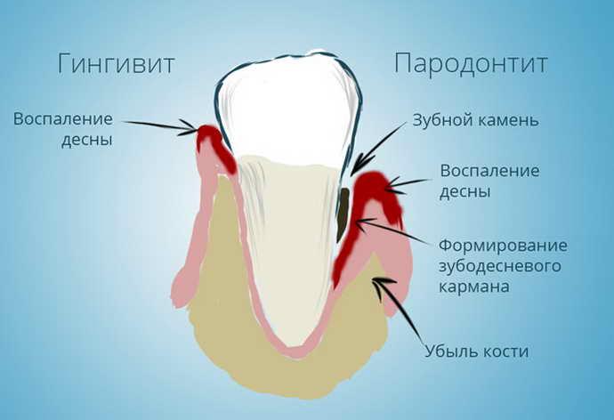 Основным противопоказания к применениюакриловых зубных протезовявляется аллергическая реакция