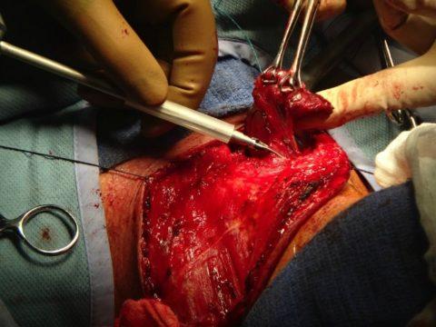 Процедура тиреоидэктомии