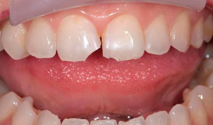 Травмы, образующиеся в результате механического воздействия и боль языка сбоку