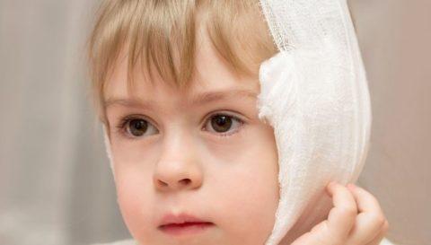 Врачи не рекомендуют ставить спиртовые компрессы детям