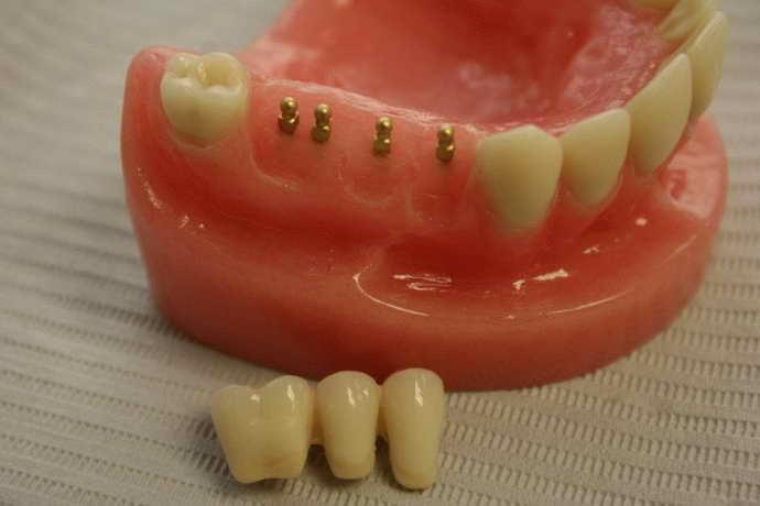 Мини-импланты как альтернатива имплантации зубов