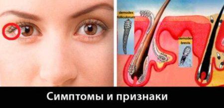 Методы лечения демодекса в области глаз: причины развития, симптомы и профилактика