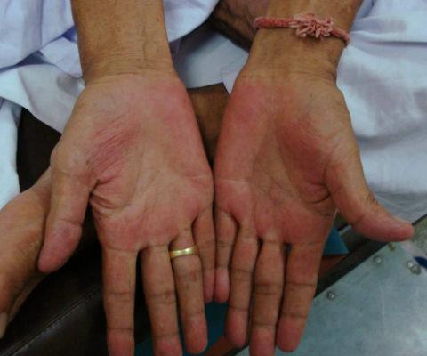 Пальмарная эритема (покраснение) при циррозе