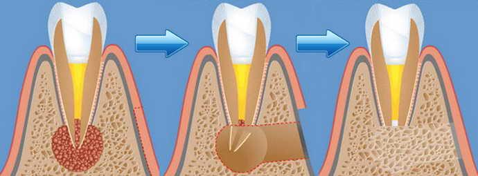 Цистоэктомия и радикулярная киста верхней челюсти