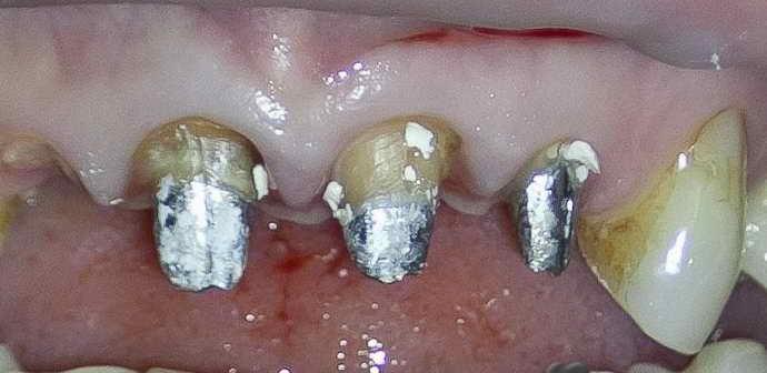 Что такое вкладка на зуб под коронку