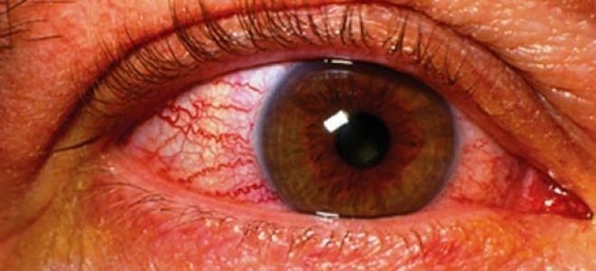 Атрофия зрительного нерва: из-за чего возникает, как проявляется и лечится